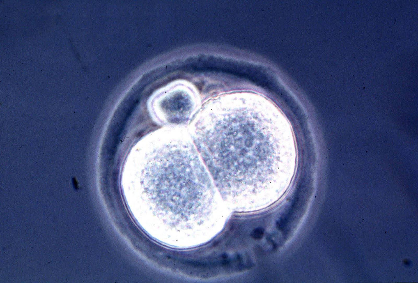 California: gruppo di ricercatori crea il primo embrione uomo-pecora