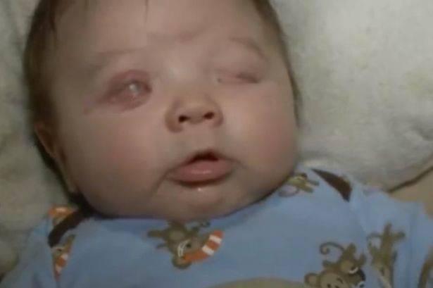 Il piccolo Richie è nato senza occhi, ma è circondato dall'amore