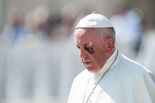 Vittima di abuso chiede al Santo Padre la destituzione di Delpini