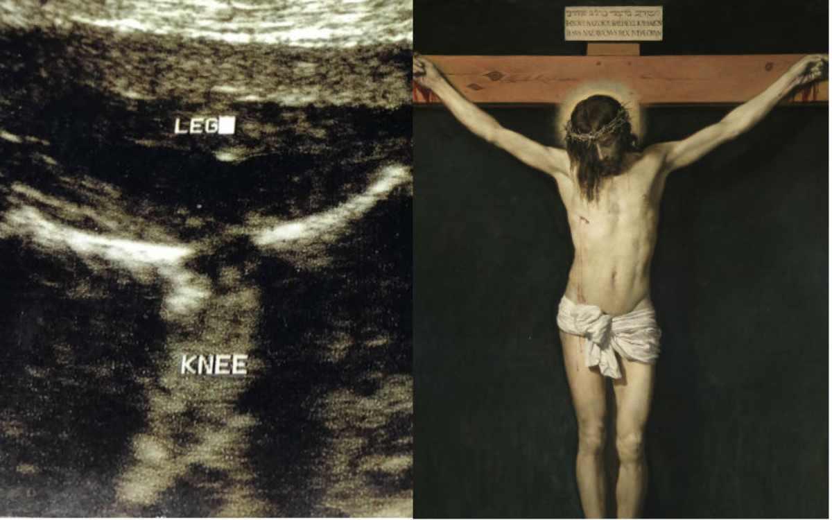 Nell'ecografia spunta l'immagine di Gesù