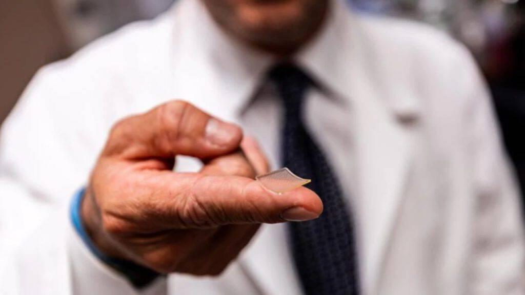 cerotto microchip